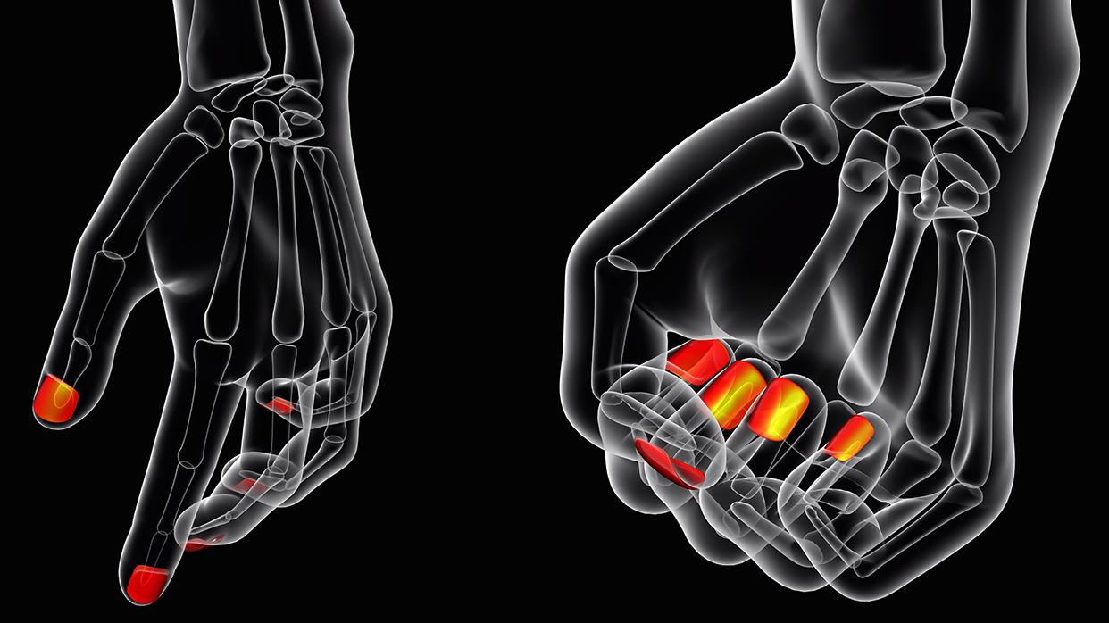 Как устроен ноготь иочем расскажет изменение цвета пластины